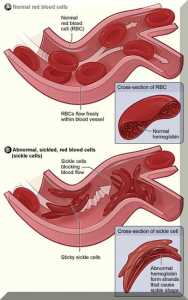Sickle Cell Anemia Curable Via Nutrition